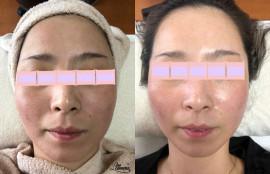 いくつになってもお肌は蘇る「肌質改善*再生美容」