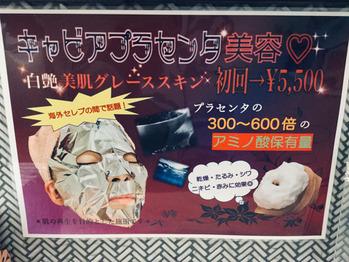今話題のキャビアプラセンタ美容「白艶美肌グレーススキン(1回5,500円)」
