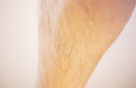 脚、腕脱毛も男の身だしなみ(メンズ脱毛)