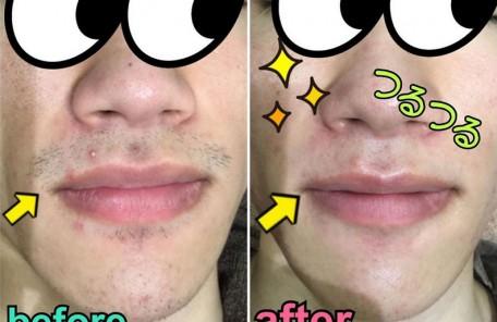 ヒゲ脱毛での髭剃りと肌トラブルから解放