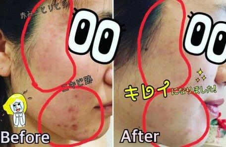 肌再生美容で肌が生まれ変わる!