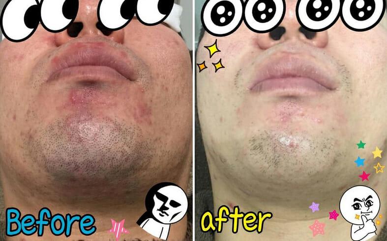 男性の髭の悩み、肌のトラブルはサロンケア+スキンケア対策